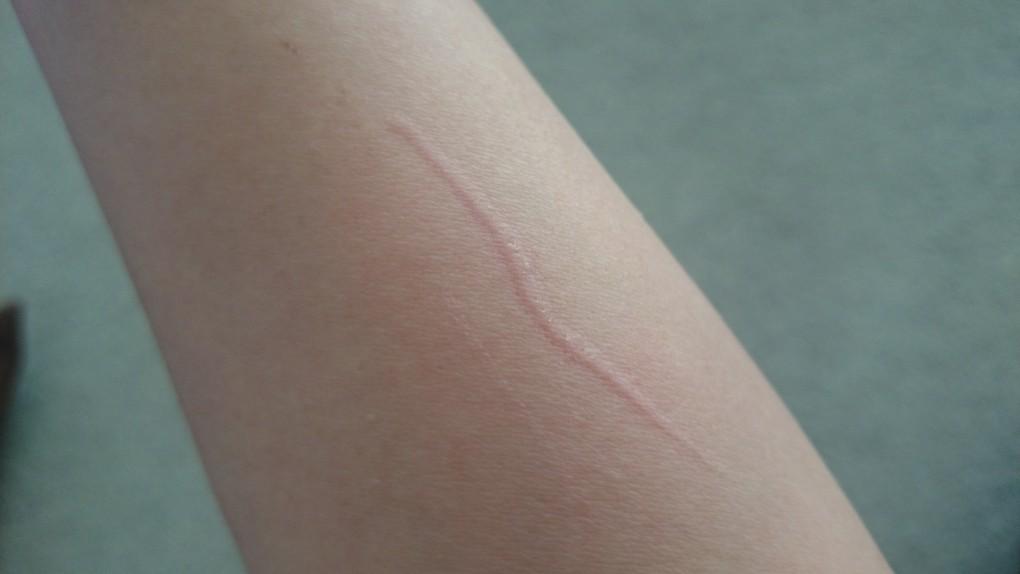 猫の爪切り 血がにじむ