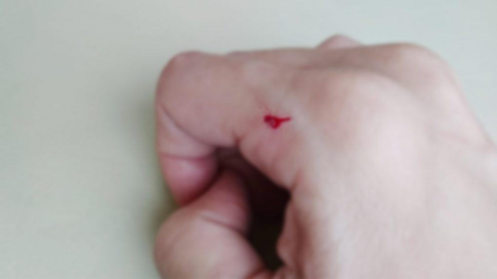 猫の後ろ足の爪で流血